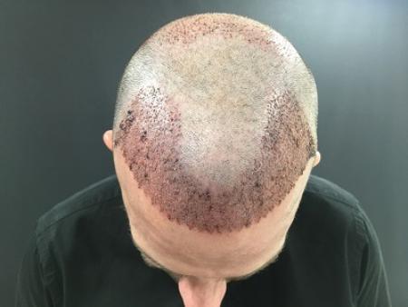 Hair Transplant In Turkey Spain Istanbul Clinic Advisor